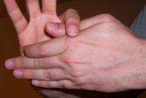 Thumb on